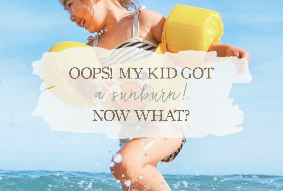 Oops! My Kid Got A Sunburn! Now What?