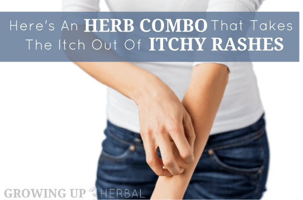 Here's An Herb Combo That Takes The Itch Out Of Itchy Rashes