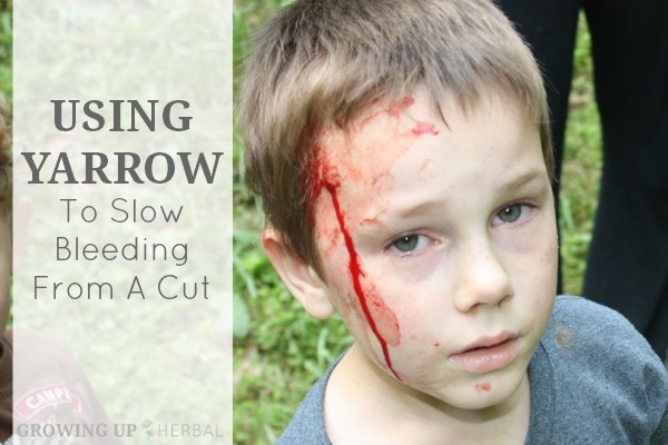 Using Yarrow To Slow Bleeding From A Cut | Growing Up Herbal | A story of a wound and how yarrow helped stop its bleeding.